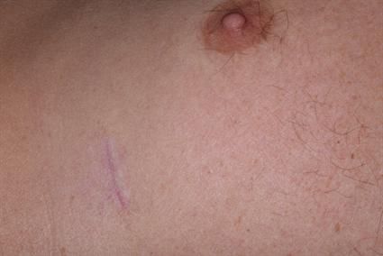 Rib harvest scar at 8 weeks